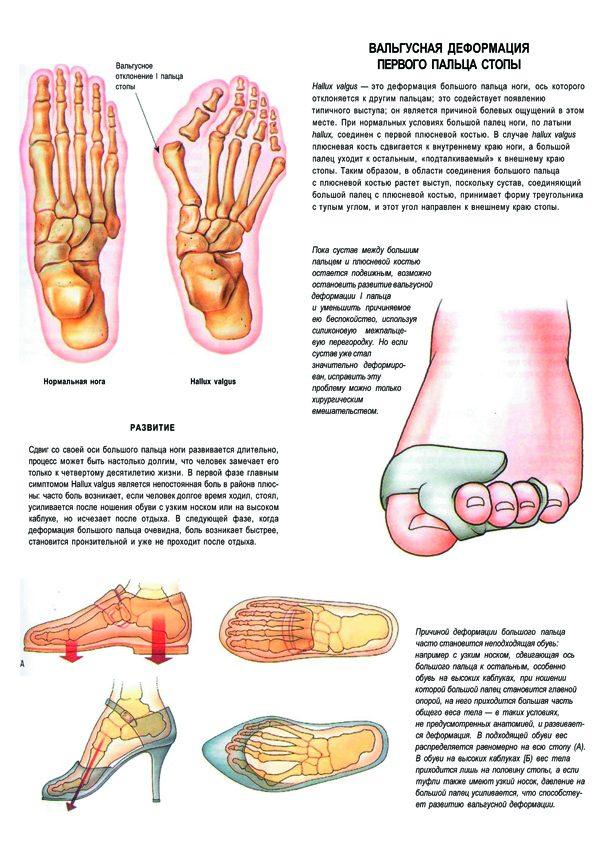 Плакат вальгусная деформация первого пальца стопы